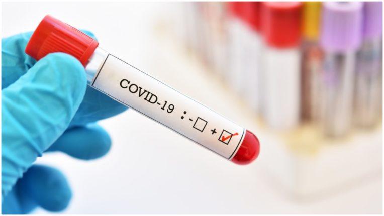 वाशिम में  5 नए पाजिटिव, संक्रमित मरीजों की संख्या बढ़कर हुई 124