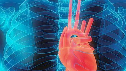 एसएमएस कंपनी के प्रदूषण से बढ़ रही सांस की बीमारी