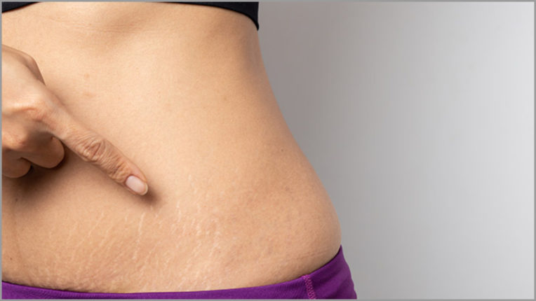 Finish stretch marks in a pinch, follow these easy tips