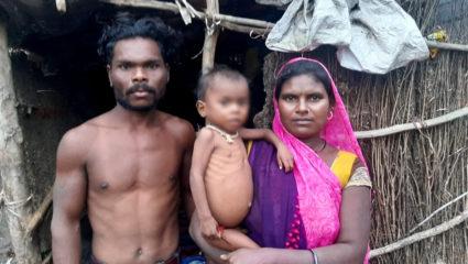 मेलघाट: मंत्री-राज्यमंत्री के गृहजिले से कब मिटेगा कुपोषण का अभिशाप